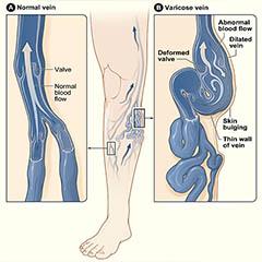 Как избежать возникновения осложнений при варикозе?